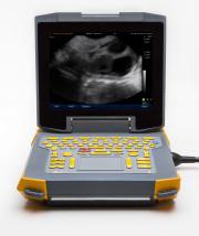 Ibex ultrasound